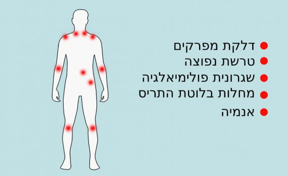 fibromyalgia mimics